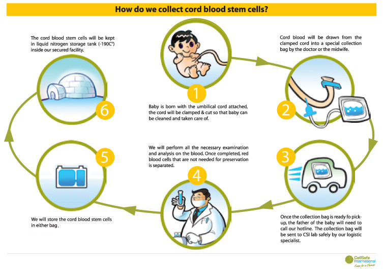 Cord Blood Banking Cost >> Cord Blood Banking Ray Chua